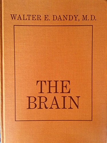 9780061406812: The Brain
