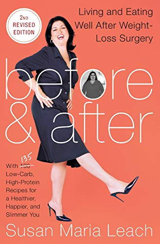 9780062239990: Before & After, Second Revised Edition: Living and Eating Well After Weight-Loss Surgery
