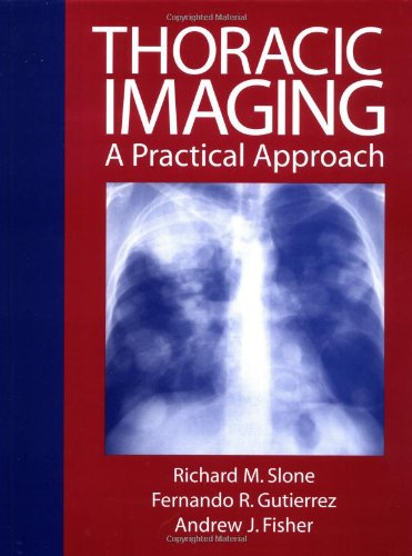 9780070582231: Thoracic Imaging: A Practical Approach