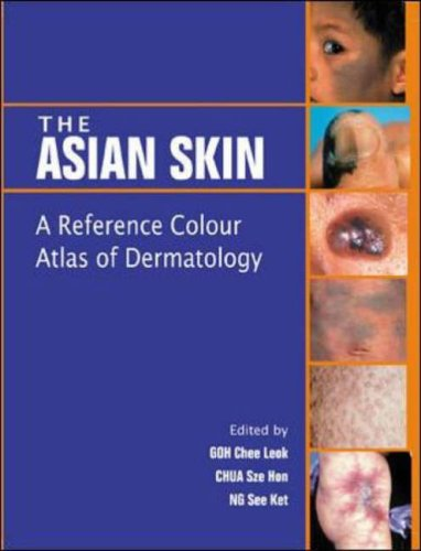 9780071239394: The Asian Skin: A Reference Color Atlas of Dermatology