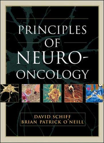 9780071425155: Principles and Practice of Neuro-Oncology
