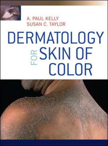 9780071446716: Dermatology for skin of color