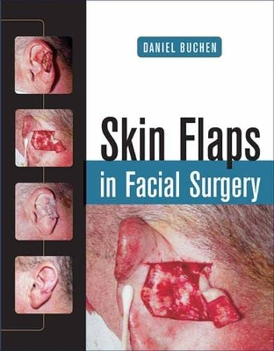 9780071459433: Skin Flaps in Facial Surgery