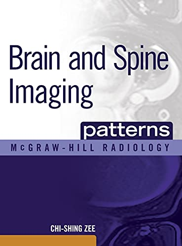 9780071465410: Brain and Spine Imaging Patterns (McGraw-Hill Radiology)