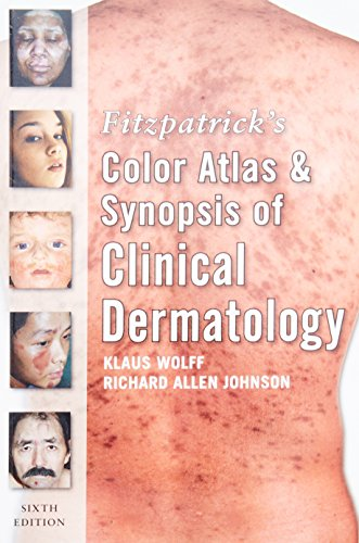 Fitzpatrick`s Color Atlas and Synopsis of Clinical Dermatology, Sixth Edition: Klaus Wolff,Richard ...