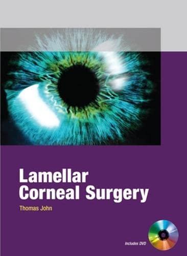 9780071601924: Lamellar Corneal Surgery (Medical/Denistry)