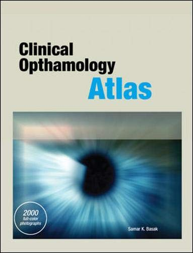 9780071602013: Clinical Ophthalmology  Atlas