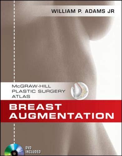 9780071606431: Breast Augmentation (McGraw-Hill Plastic Surgery Atlas)