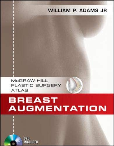 9780071606431: Breast Augmentation (McGraw-Hill Plastic Surgery Atlas)