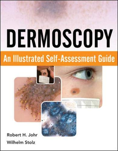 9780071613552: Dermoscopy: An Illustrated Self-Assessment Guide