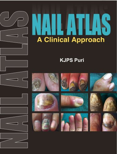 Nail Atlas: A Clinical Approach: Puri, K.J.P.S.