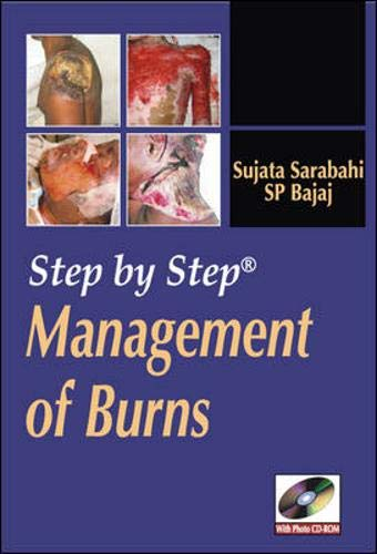 9780071634304: Step by Step Management of Burns