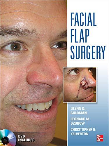 9780071749251: Facial Flaps Surgery