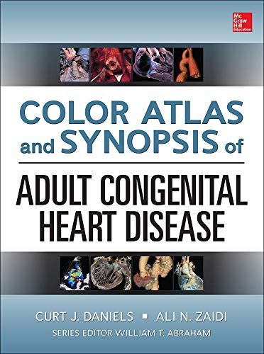 9780071749435: Color Atlas and Synopsis of Adult Congenital Heart Disease (Cardiolgy)