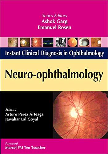 Neuro-Ophthalmology (Instant Clinical Diagnosis in Ophthalmology): Arturo Perez Arteaga;