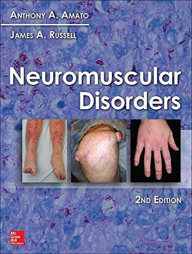 Neuromuscular Disorders: Anthony A. Amato