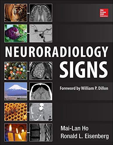 9780071804325: Neuroradiology Signs