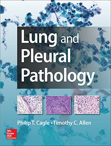 9780071809559: Lung and Pleural Pathology (Medical/Denistry)