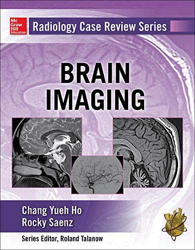 9780071826914: Radiology Case Review Series: Brain Imaging