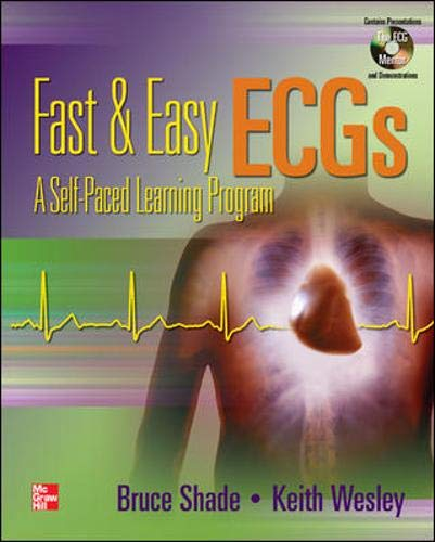 9780072974096: Fast & Easy ECGs with DVD