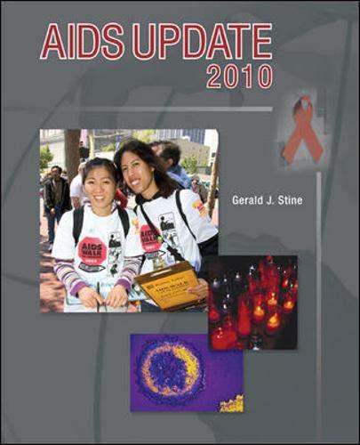 9780073527611: AIDS Update 2010 (Textbook)