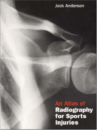 9780074708880: An Atlas of Radiography for Sports Injuries