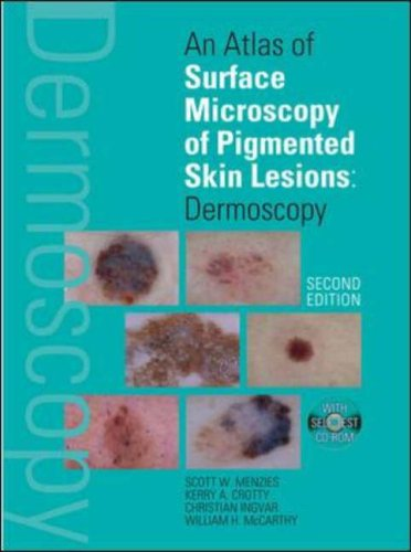 9780074711026: An Atlas of Surface Microscopy of Pigmented Skin Lesions: Dermoscopy,  Second Edition