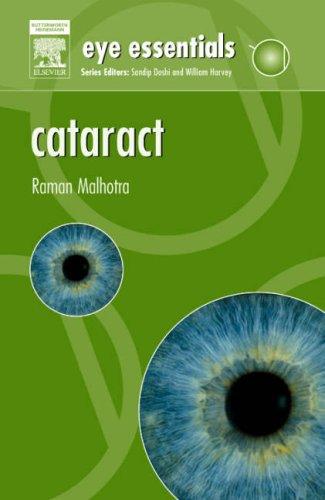 9780080449777: Eye Essentials: Cataract: Assessment, Classification and Management, 1e
