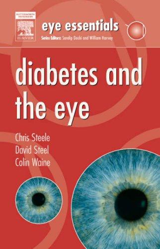 9780080453071: Diabetes and the Eye (Eye Essentials)