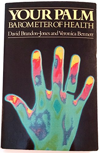 9780091590819: Your Palm: Barometer of Health