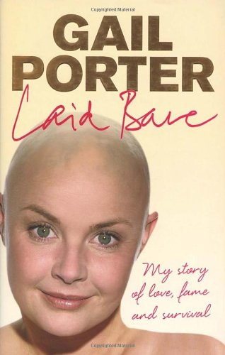 9780091920401: Laid Bare: My Story of Love, Fame and Survival