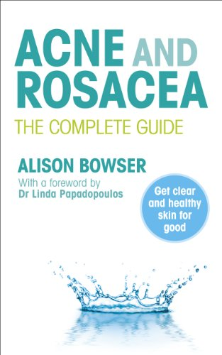 9780091929701: Acne and Rosacea: The Complete Guide