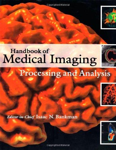 9780120777907: Handbook of Medical Imaging: Processing and Analysis Management (Biomedical Engineering)
