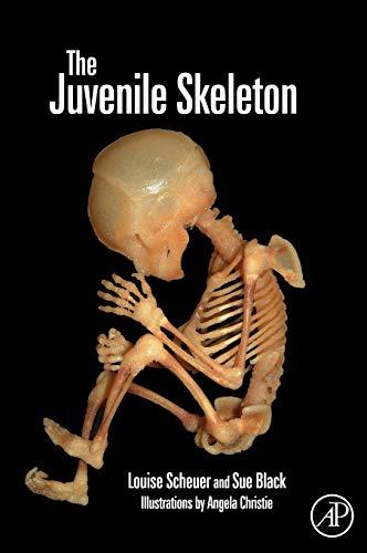 9780121028213: The Juvenile Skeleton