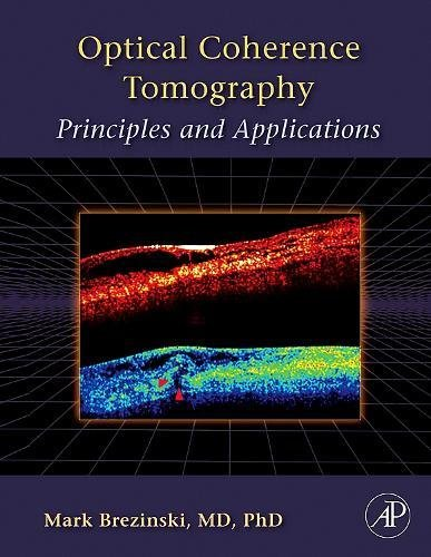 9780121335700: Optical Coherence Tomography: Principles and Applications