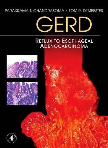 9780123694164: GERD: Reflux to Esophageal Adenocarcinoma