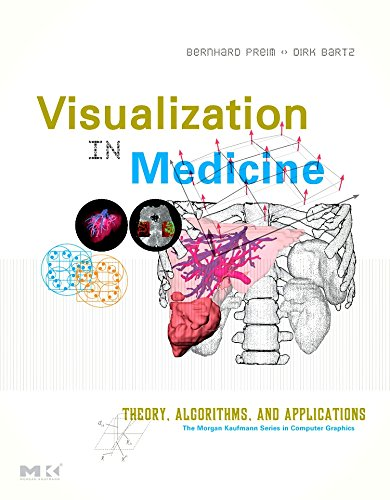 9780123705969: Visualization in Medicine,: Theory, Algorithms, and Applications (The Morgan Kaufmann Series in Computer Graphics)
