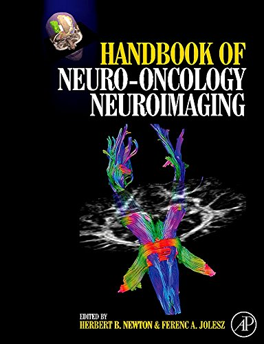 9780123708632: Handbook of Neuro-Oncology Neuroimaging