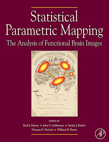 9780123725608: Statistical Parametric Mapping: The Analysis of Functional Brain Images