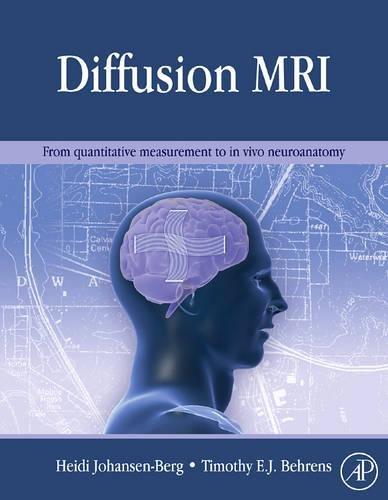 9780123747099: Diffusion MRI: From quantitative measurement to in-vivo neuroanatomy