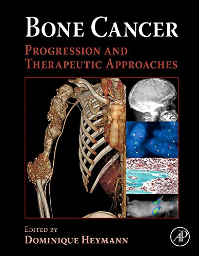 9780123748959: Bone Cancer: Progression and Therapeutic Approaches
