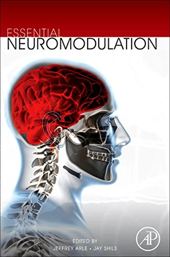9780123814098: Essential Neuromodulation