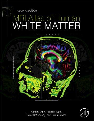 9780123820815: MRI Atlas of Human White Matter