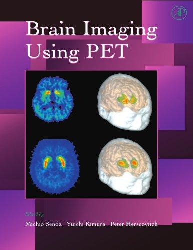 9780123907615: Brain Imaging Using PET