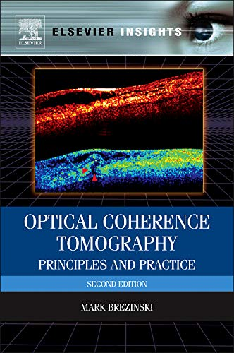 9780123969644: Optical Coherence Tomography, Second Edition: Principles and Practice
