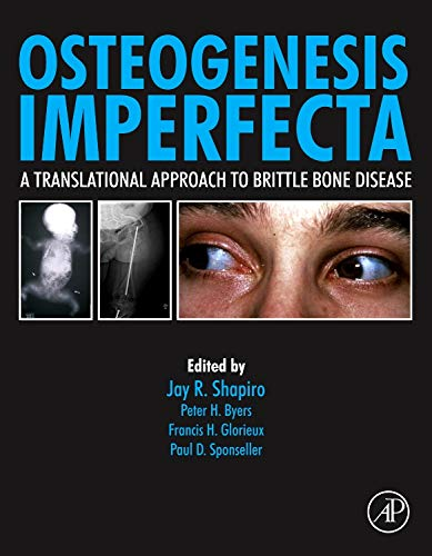 9780123971654: Osteogenesis Imperfecta: A Translational Approach to Brittle Bone Disease