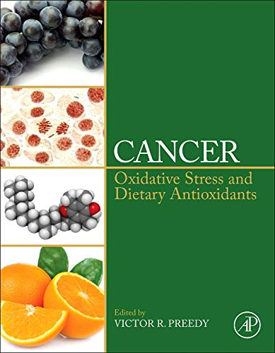 9780124052055: Cancer: Oxidative Stress and Dietary Antioxidants