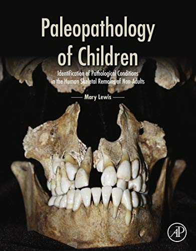 Paleopathology of Children: Identification of Pathological Conditions: Mary Lewis