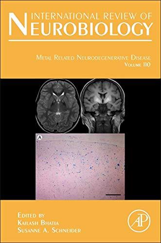 9780124105027: Metal Related Neurodegenerative Disease