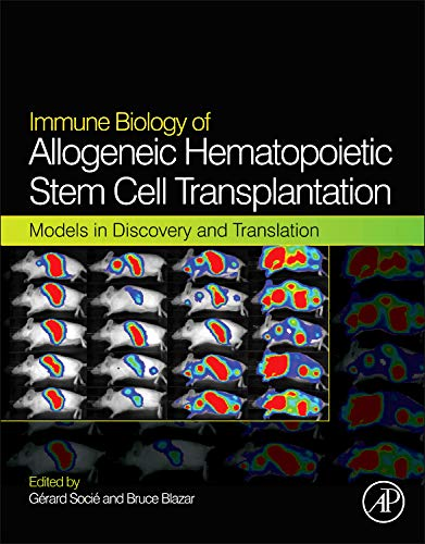 9780124160040: Immune Biology of Allogeneic Hematopoietic Stem Cell Transplantation